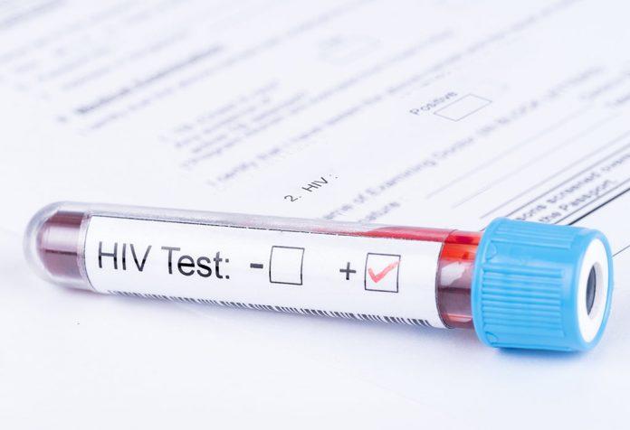 كيف يتم اختبار فيروس نقص المناعة البشرية؟