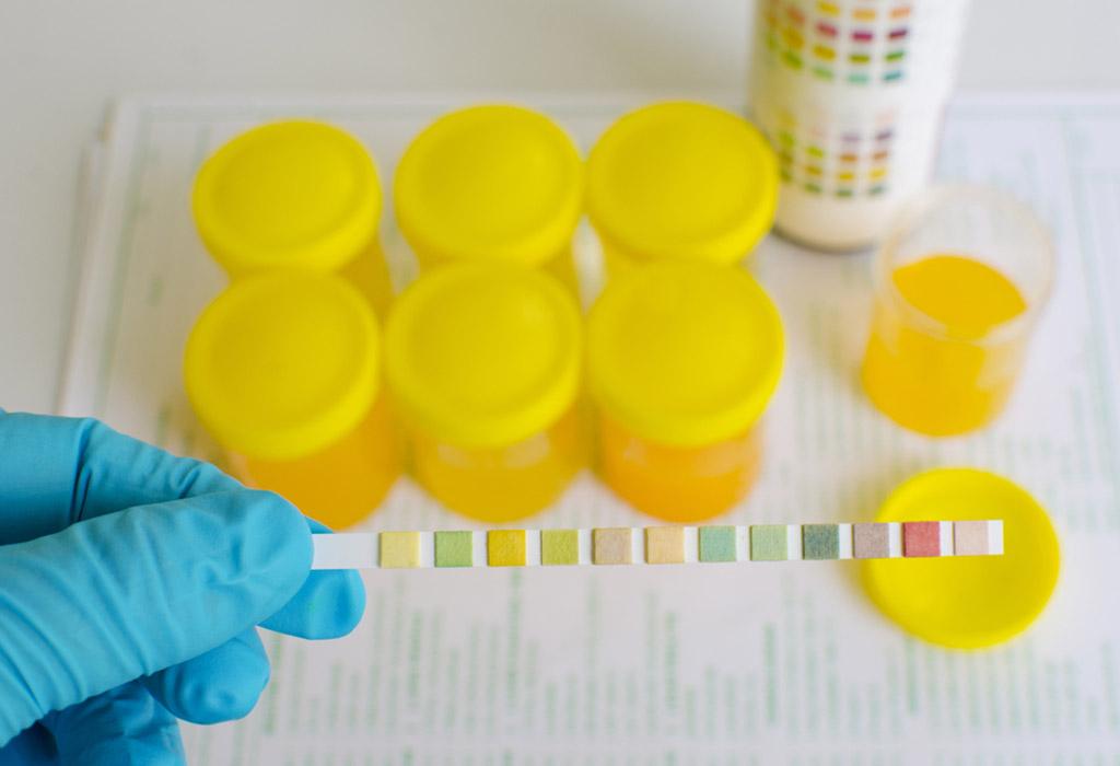 البروتين في البول أثناء الحمل