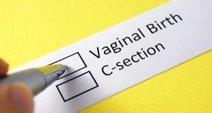 الولادة الطبيعية مقابل الولادة القيصرية - المزايا والعيوب