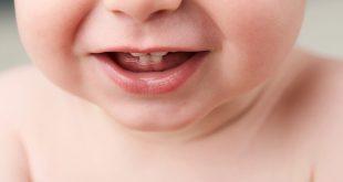 التسنين في الأطفال الصغار - الأعراض والعلاجات