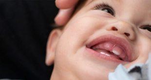 كيفية التعامل مع الأسنان الملتوية عند الأطفال الرضع