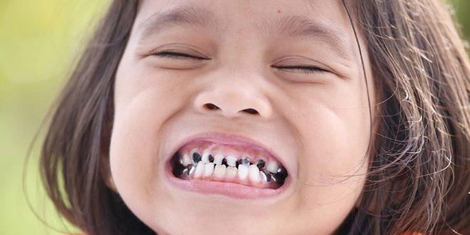 كيفية التعامل مع الأسنان المكسورة أو المشروخة عند الطفل؟