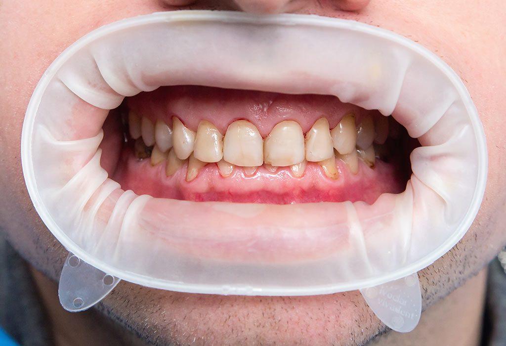 ما الذي يسبب تلون الأسنان عند الأطفال
