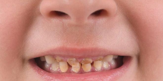 اصفرار أسنان الطفل أو تغير لونها