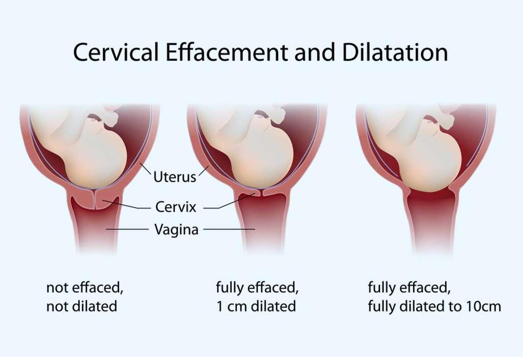 عملية الولادة الطبيعية