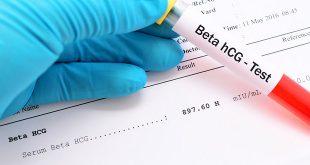 فحص الدم للتأكد من الحمل- كيف يعمل؟