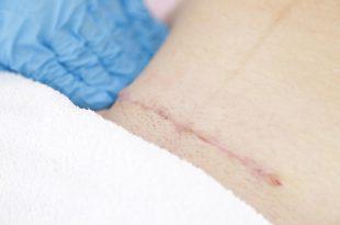 التهابات الجروح والندب الناتجة عن الولادة القيصرية