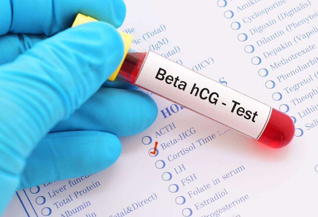 اختبار مصل الدم الكمي
