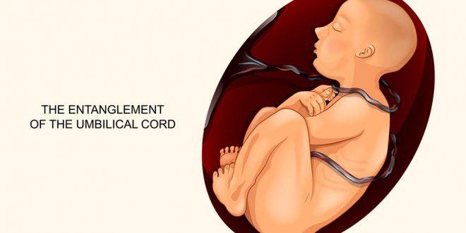 الحبل السري حول رقبة الجنين: الأسباب والعلامات والعلاجات