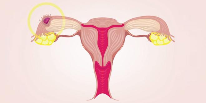 الحمل خارج الرحم - الأسباب والأعراض والعلاج