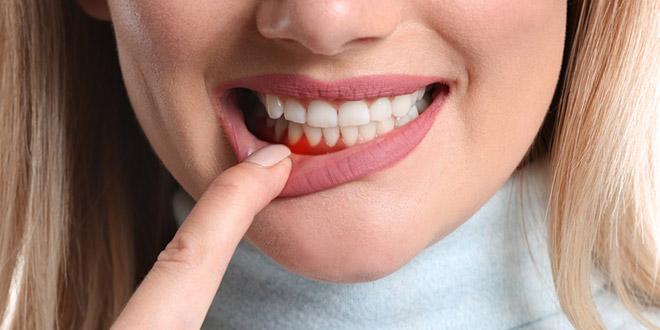 مشاكل الأسنان وعلاجها أثناء الحمل