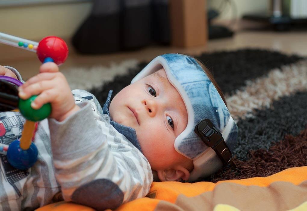 بعض الطرق لعلاج شكل رأس الطفل غير المستوي
