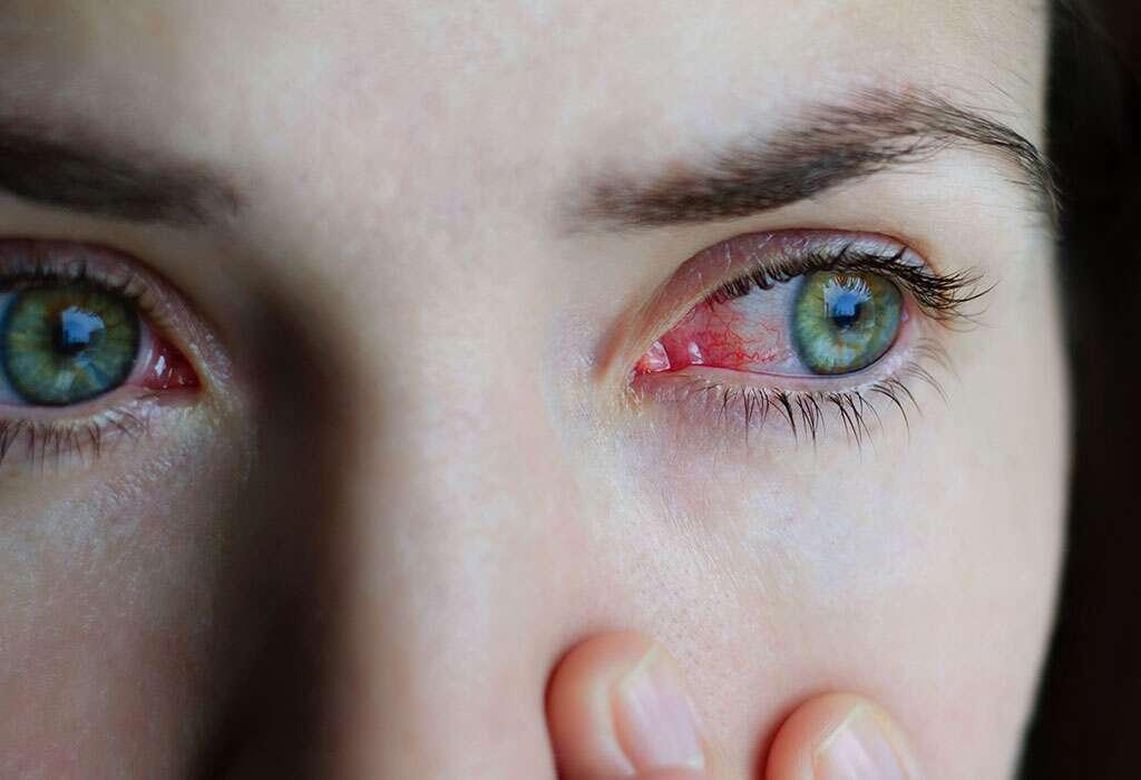 التهاب الملتحمة (Conjunctivitis) أو العين الوردية