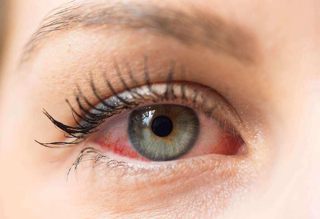 جفاف العيون