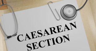 العمليات القيصرية المتعددة أو المتكررة - الفوائد والمخاطر