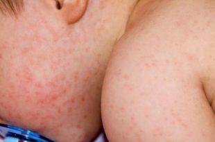 أنواع الحساسية الجلدية الشائعة عند الأطفال