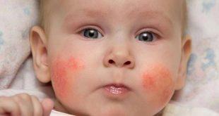 الطفح الجلدي على وجه الطفل الرضيع - الأنواع والأسباب والعلاج
