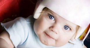 الرأس الوارِب عند الأطفال (متلازمة الرأس المسطح) - الأسباب والعلاج