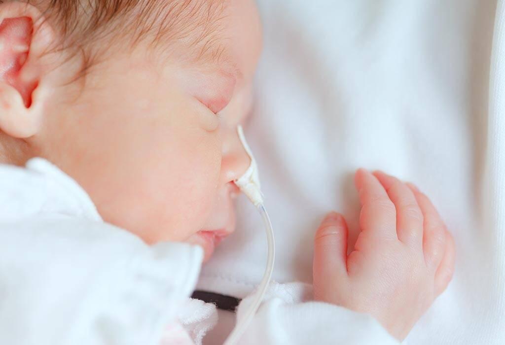 متلازمة الضائقة التنفسية (RDS)