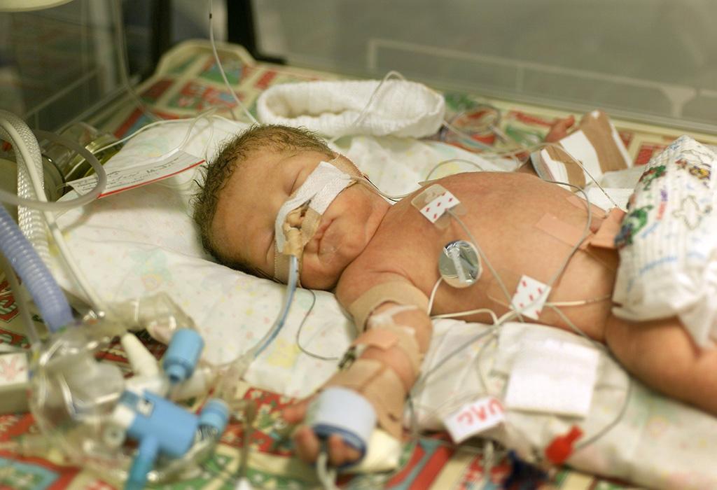 أسباب انخفاض السكر عند الأطفال حديثي الولادة
