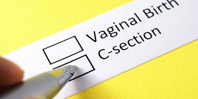 الولادة القيصرية – ما هي فوائدها ومخاطرها؟
