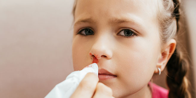نزيف الأنف عند الأطفال