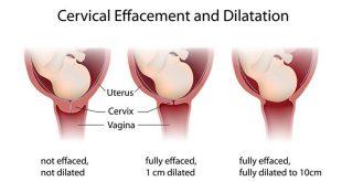 تمدد عنق الرحم أثناء المخاض والولادة