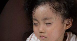 ضربة الحر عند الأطفال