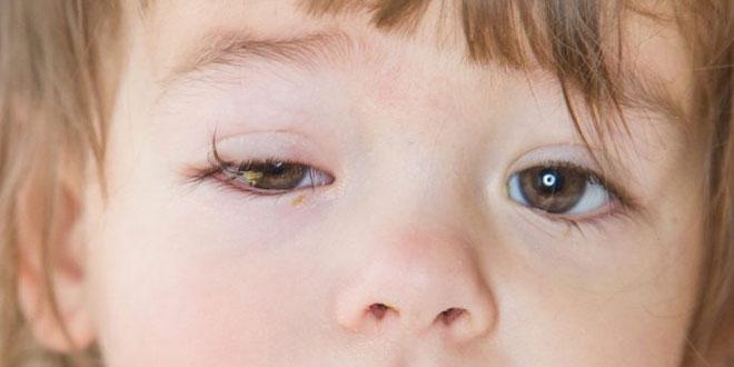 التهاب الملتحمة (العين الوردية) عند الأطفال والرضع