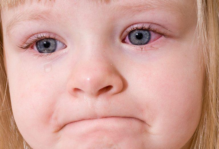 هل العين الوردية معدية؟