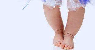 تقوس الأرجل في الرضع والأطفال الصغار
