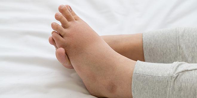 آلام القدم أثناء الحمل