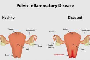 مرض التهاب الحوض: الأسباب والأعراض والعلاج