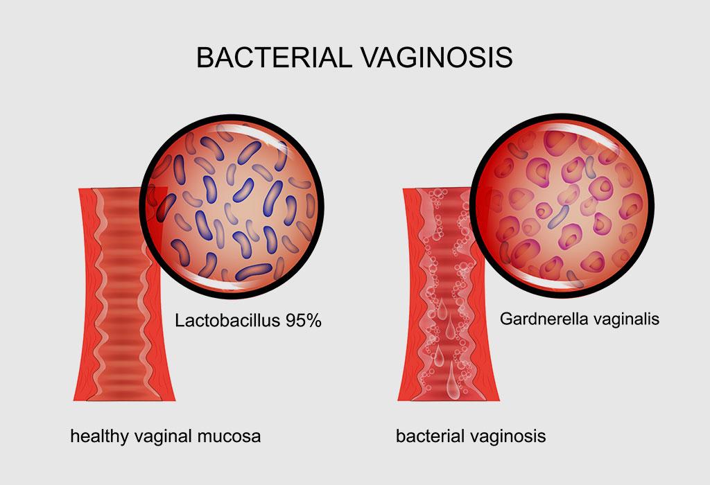المضاعفات المحتملة التي قد تحدث بسبب مرض التهاب الحوض